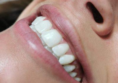 White Teeth 1